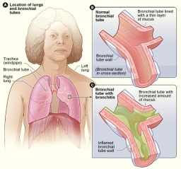 7 Ways for Immediate Relief from Bronchitis